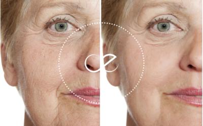 Como posso melhorar a Flacidez da pele do meu rosto e corpo?